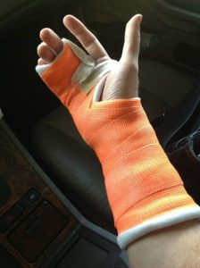 Broken_right_hand_in_orange_cast